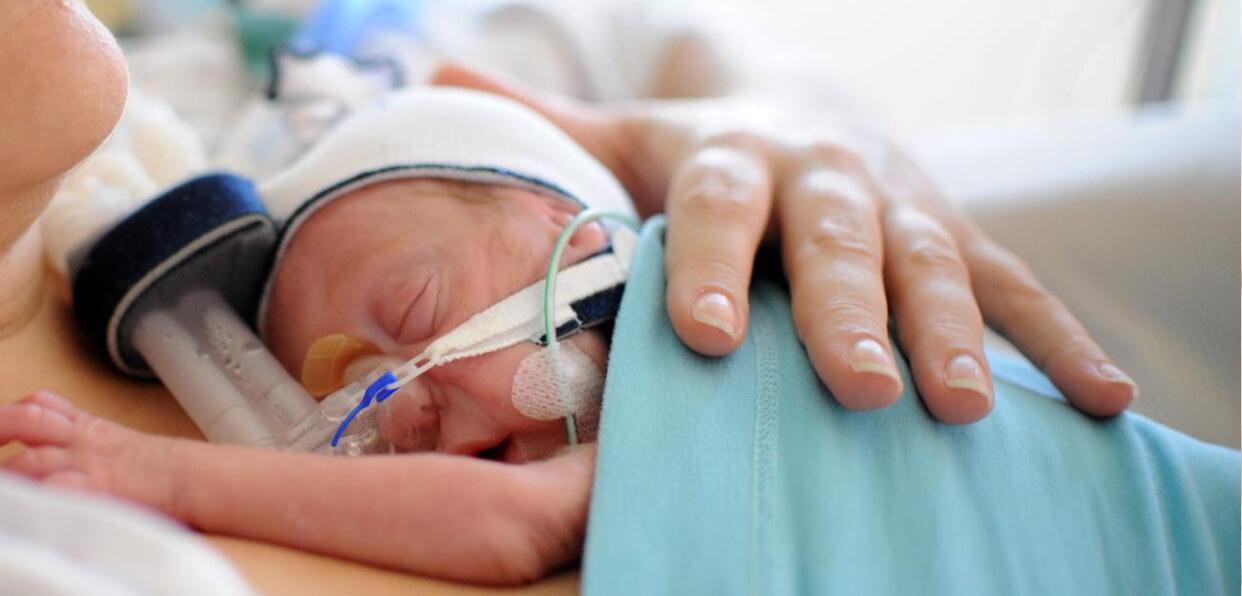 Favoriser le peau-à-peau en néonatalogie